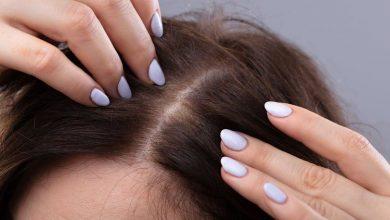 Photo of 必讀生頭瘡成因及紓緩頭瘡方法 | 生頭瘡傷及頭皮或有機會脫髮