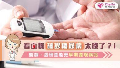 Photo of 看血糖確診糖尿病太晚了?!醫籲,這檢查能更早期發現病兆